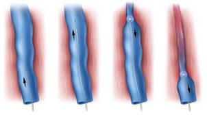 лазеротерапия вен