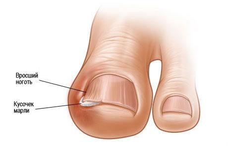 полный намяла палец на ноге ноготь отходит семья ребёнком возьмет