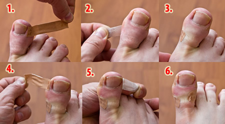 У мужа грибок между пальцами ног